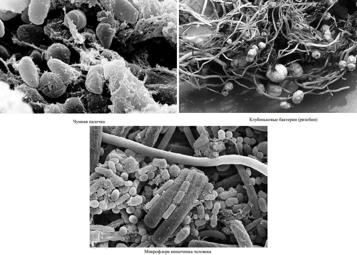клетки бактерий